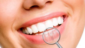implante-dentario-eclinic
