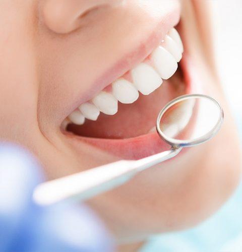 periodontia-cd3-odontologia-dentista-goiania-goiás-clinica-dentária-consultorio-bruno-mendonça